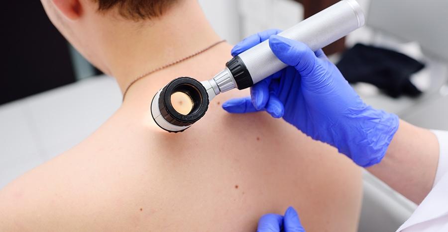 dermatoscop cu imersie